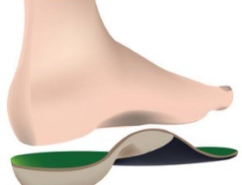 Corrige los dolores de pies, cadera, rodillas o espalda con unas plantillas